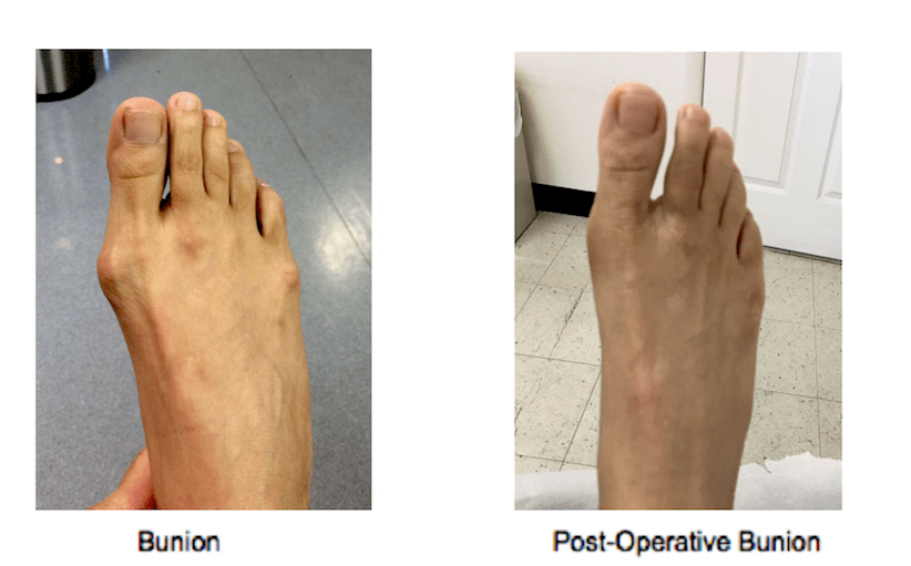 Bunion Surgery NY, NY