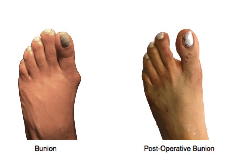 Bunion-Surgery-NYC