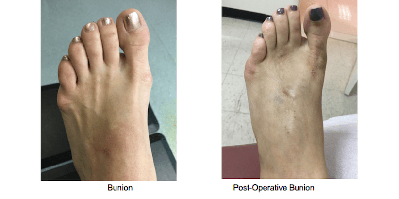 Bunion Surgery - NYC Podiatrist