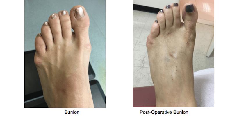 Bunion Surgery - NYC Podiatrist