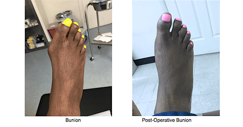 Bunion Surgery, New York, NY
