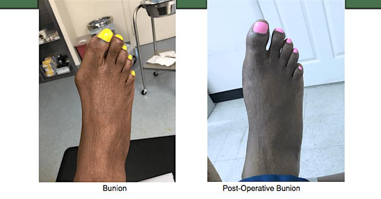 Bunion Surgery, New York, NY